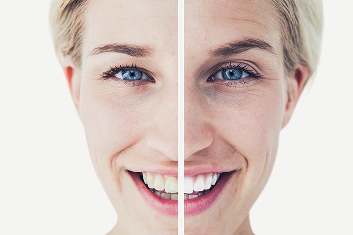 Cosmetic Dentist in Springfield VA